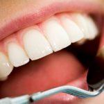 كيف تحافظين على بياض أسنانك